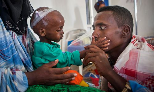 Millions of children are suffering from malnutrition and starvation in Somalia